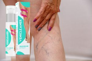 veliko-tarnovo.net How-You-Can-Benefit-From-Sclerotherapy
